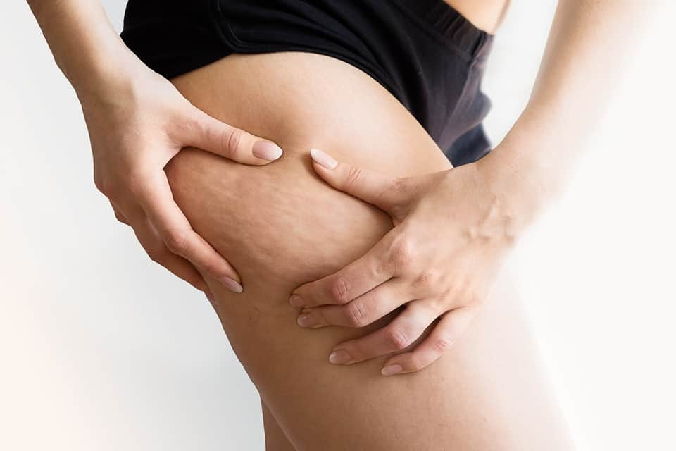 ¿Se puede atenuar o eliminar la celulitis de nuestro cuerpo?